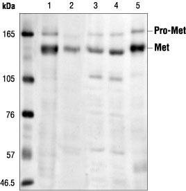 Western blot - Met (c-Met) antibody [3i20] (ab14571)