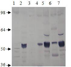 Western blot - Anti-PDE7A antibody (ab14616)