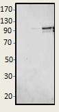 Western blot - Anti-PDE4D7 antibody (ab14629)