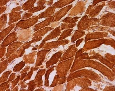 Immunohistochemistry (Frozen sections) - Anti-MTCO1 antibody [1D6E1A8] (ab14705)