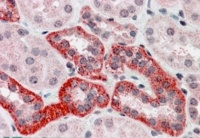Immunohistochemistry (Formalin/PFA-fixed paraffin-embedded sections) - Anti-S6K antibody (ab14708)