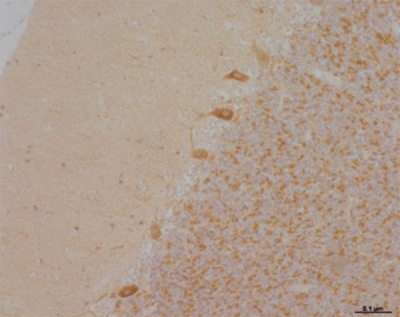 Immunohistochemistry (Formalin/PFA-fixed paraffin-embedded sections) - NDUFA9 antibody [20C11] (ab14713)