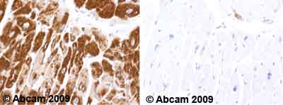 Immunohistochemistry (Formalin/PFA-fixed paraffin-embedded sections) - VDAC1 / Porin antibody [20B12] - Mitochondrial Loading Control (ab14734)
