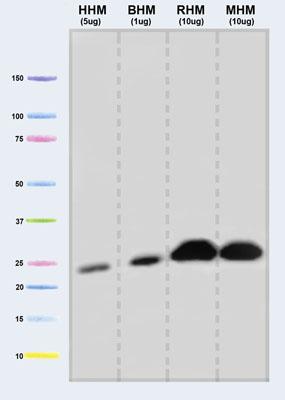 Western blot - UQCRFS1 antibody [5A5] (ab14746)