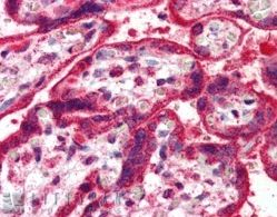 Immunohistochemistry (Formalin/PFA-fixed paraffin-embedded sections) - NEIL1 antibody (ab14753)
