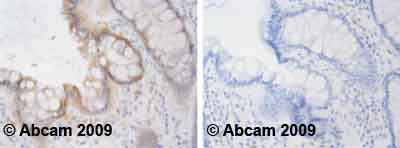 Immunohistochemistry (Formalin/PFA-fixed paraffin-embedded sections) - PPM1A antibody [p6c7] (ab14824)