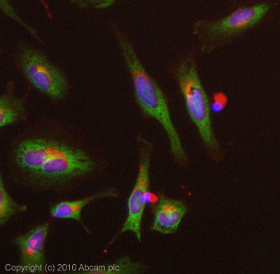 Immunocytochemistry/ Immunofluorescence-SOCS3  antibody [SO1](ab14939)