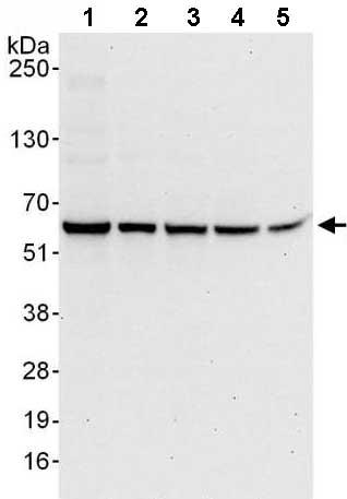 Western blot - Anti-Proteasome 26S S3 antibody (ab140440)