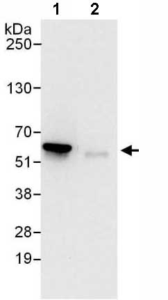 Immunoprecipitation - Anti-Proteasome 26S S3 antibody (ab140440)