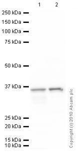 Western blot - CRALBP antibody [B2] (ab15051)