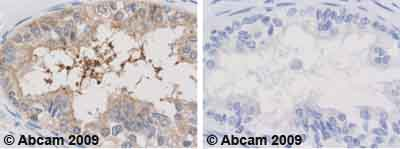 Immunohistochemistry (Formalin/PFA-fixed paraffin-embedded sections) - Anti-SCP3 antibody (ab15093)