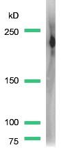 Western blot - Dysferlin antibody, prediluted (ab15109)