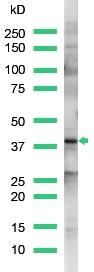 Western blot - Connexin 43 / GJA1 antibody (ab15189)