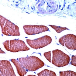 Immunohistochemistry (Formalin/PFA-fixed paraffin-embedded sections) - skeletal muscle Actin antibody, prediluted (ab15265)