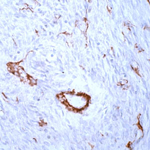 Immunohistochemistry (Formalin/PFA-fixed paraffin-embedded sections) - alpha smooth muscle Actin antibody, prediluted (ab15267)