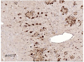 Immunohistochemistry (Formalin/PFA-fixed paraffin-embedded sections) - Amyloid Precursor Protein antibody (ab15272)