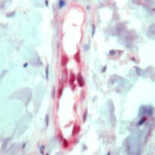 Immunohistochemistry (Formalin/PFA-fixed paraffin-embedded sections) - FLI1 antibody (ab15289)