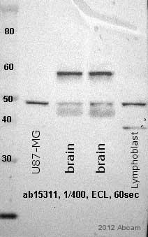 Western blot - Anti-Glucose Transporter GLUT3 antibody (ab15311)