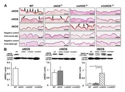 Immunohistochemistry (Frozen sections) - iNOS antibody (ab15323)