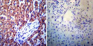 Immunohistochemistry (Formalin/PFA-fixed paraffin-embedded sections)-Anti-Presenilin 1 antibody [APS 11](ab15456)