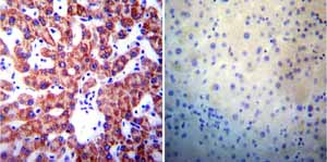 Immunohistochemistry (Formalin/PFA-fixed paraffin-embedded sections)-Anti-Presenilin 1 antibody [APS 18](ab15458)