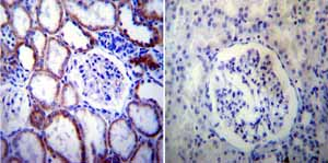 Immunohistochemistry (Formalin/PFA-fixed paraffin-embedded sections)-Anti-Presenilin 2 antibody [APS 21](ab15548)