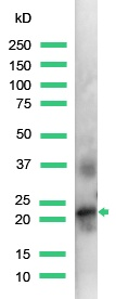 Western blot - Placental lactogen antibody, prediluted (ab15555)