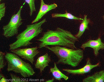 Immunocytochemistry/ Immunofluorescence - Anti-beta Tubulin antibody (ab15568)