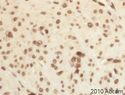 Immunohistochemistry (Formalin/PFA-fixed paraffin-embedded sections) - Prickle antibody (ab15577)
