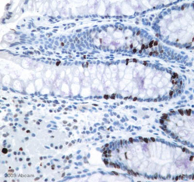 Immunohistochemistry (Formalin/PFA-fixed paraffin-embedded sections) - Ki67 antibody - Proliferation Marker (ab15580)