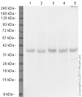 Western blot - Anti-VDAC1 / Porin antibody - Mitochondrial Loading Control (ab15895)