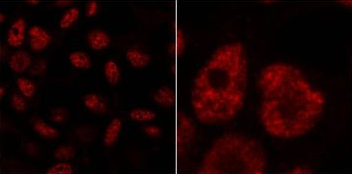 Immunocytochemistry/ Immunofluorescence - Anti-CHERP antibody (ab15951)