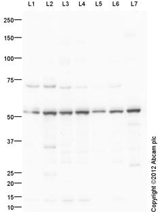 Western blot - Anti-ATPB antibody (ab150291)