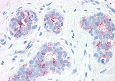 Immunohistochemistry (Formalin/PFA-fixed paraffin-embedded sections) - Anti-Synaptogyrin 2 antibody (ab150326)