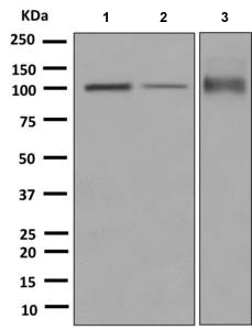 Western blot - Anti-Desmocollin 1 antibody [EPR8220] (ab150382)