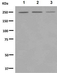 Western blot - Anti-Myosin VIIa antibody [EPR7497] (ab150386)