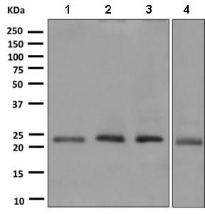 Western blot - Anti-Proteasome 20S beta 6 antibody [EPR9684] (ab150392)