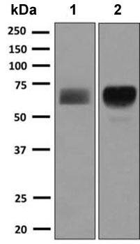 Western blot - Anti-Hemopexin antibody [EPSISR42] (ab150401)