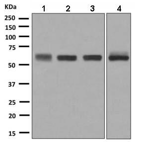 Western blot - Anti-Carboxypeptidase M antibody [EPR8052] (ab150405)