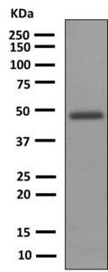 Western blot - Anti-Uroplakin III antibody [EPR3612(2)] (ab150409)