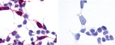 Immunocytochemistry - Anti-Frizzled 6 antibody - N-terminal (ab150545)