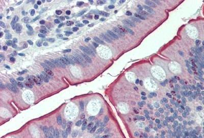 Immunohistochemistry (Formalin/PFA-fixed paraffin-embedded sections) - Anti-MUPCDH antibody (ab150550)