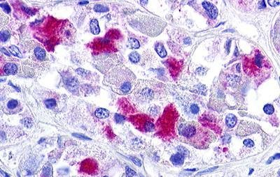 Immunohistochemistry (Formalin/PFA-fixed paraffin-embedded sections) - Anti-GnRHR antibody - Cytoplasmic domain (ab150556)