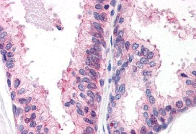 Immunohistochemistry (Formalin/PFA-fixed paraffin-embedded sections) - Anti-ENPP3 antibody - C-terminal (ab150558)