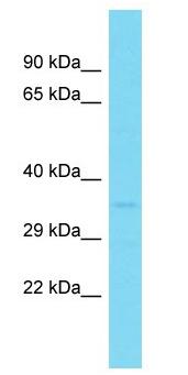 Western blot - Anti-GDPD1 antibody (ab150731)