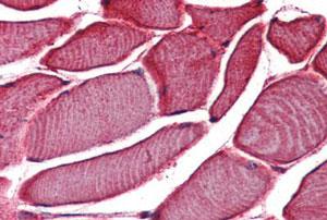 Immunohistochemistry (Formalin/PFA-fixed paraffin-embedded sections) - Anti-VRL1 antibody (ab150738)