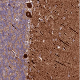 Immunohistochemistry (Formalin/PFA-fixed paraffin-embedded sections) - Anti-MRO antibody (ab150813)
