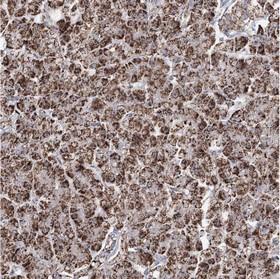 Immunohistochemistry (Formalin/PFA-fixed paraffin-embedded sections) - Anti-CWF19L1 antibody (ab150841)