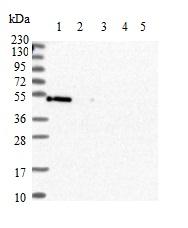 Western blot - Anti-PAMCI antibody - N-terminal (ab150853)