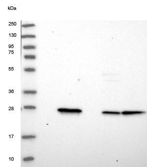 Western blot - Anti-RGS7BP antibody (ab150857)